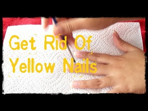 DIY: Get Rid of Your Yellow Nails Fast:D
