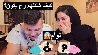 شفنا كيف رح يطلع شكل البيبي || طلع توأم !! النتيجة صدمتنا