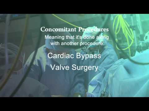 Dr. S. Cary Huber: Using a MAZE to cure Atrial Fibrillation