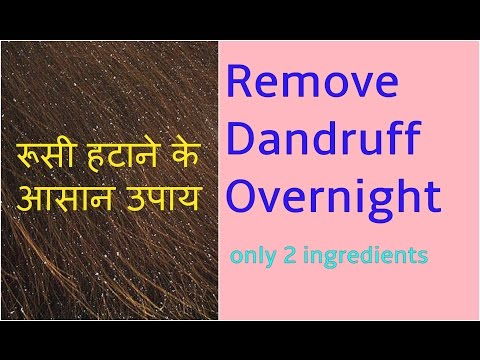 OVERNIGHT HAIR MASK for DANDRUFF TREATMENT/REMOVAL/REMEDIES AT HOME, रूसी से छुटकारा के उपाय