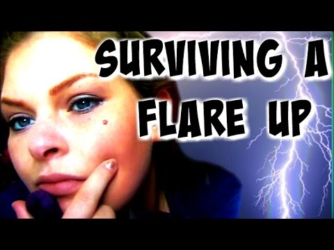 How To Survive A Flare Up?