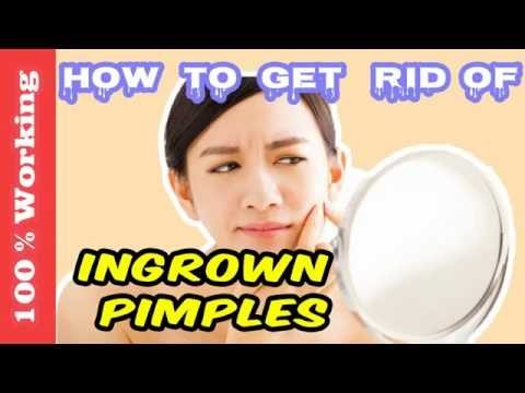 How To Get Rid Of Ingrown Pimples Overnight - Fast - Home Remedies - Blackheads - Acne - Remove