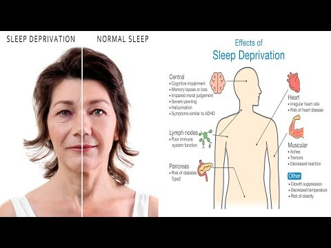10 Scary Side Effects Of Sleep Deprivation