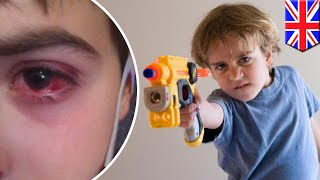 Nerf guns: Toy can cause eye swelling, bleeding when hit with foam bullets - TomoNews