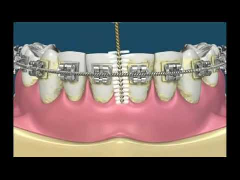 Brushing Your Teeth With Braces Using an Interdental brush
