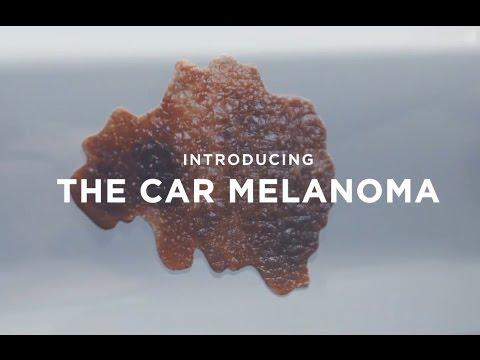 CANSA Melanoma awareness
