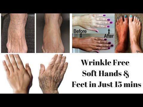 Get Fairer, Soft & Wrinkles Free Hands and Feet at Home | Wrinkle Free Hands and Feet in Just 15mins