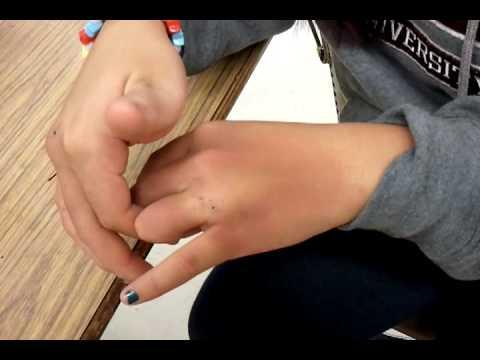 My broken knuckle?!