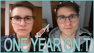 Transition From Female to Male: One Year on Testosterone
