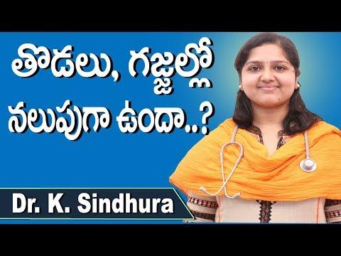 Fungal Skin Infections in Telugu   Itching   Skin Disease   Thodalu Rapidi   DoctorsTv Telugu