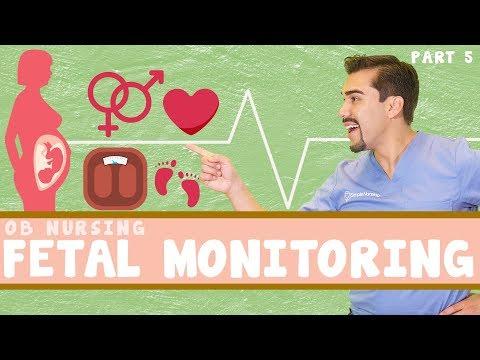 Fetal Heart Monitoring: OB nursing. Part 5