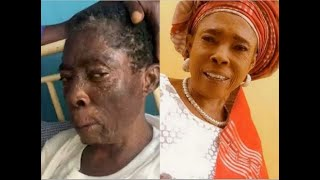 Keep Praying For Her: Popular Yoruba Actress, Iyabo Oko Discharged From Hospital