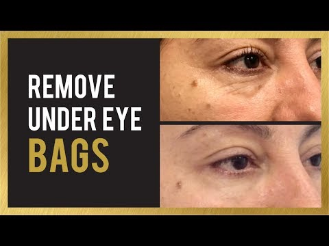 How to Remove Under Eye Bags & Circles | Filler Before and After Photos