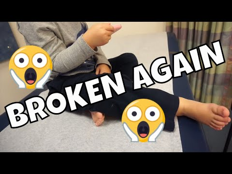 BROKEN LEG AGAIN? GETTING X-RAYS AT THE HOSPITAL!
