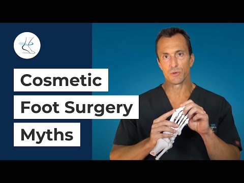 Cosmetic Foot Surgery - Dr Moore vs  'Dr Neighbor'