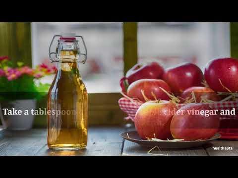 Apple Cider Vinegar for Abscessed Tooth