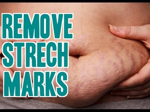 8 Tips To Remove Strech Markes | Get Rid Of  Strech Markes Naturally At Home