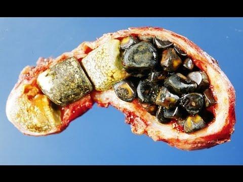 Kidney Liver Cleanse, Glytamins, Liver Detoxification, Gall Bladder Bile, Gall Bladder Supplements