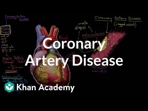What is coronary artery disease? | Circulatory System and Disease | NCLEX-RN | Khan Academy