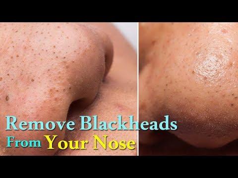 Blackhead Removal | Blackhead Mask | Blackhead Removal Mask | Nose Blackhead Removal | Blackheads