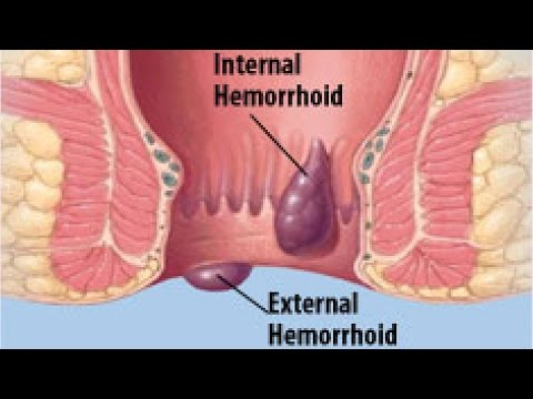 How to Shrink Hemorrhoids Fast