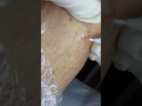 LAMPROBE removal of a Wart by Janine Thomson
