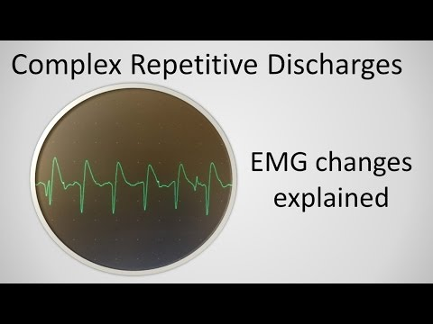 Complex Repetitive Discharges explained