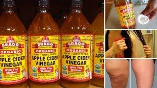 7 Surprising Beauty Benefits of Apple Cider Vinegar
