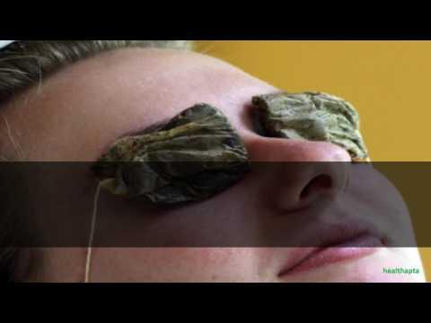 Tea Bags Compress to Get Rid of Stye Eye