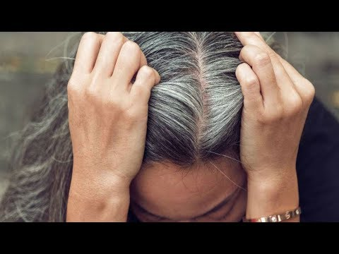 15 Simple Ways To Get Rid Of White Hair At A Young Age
