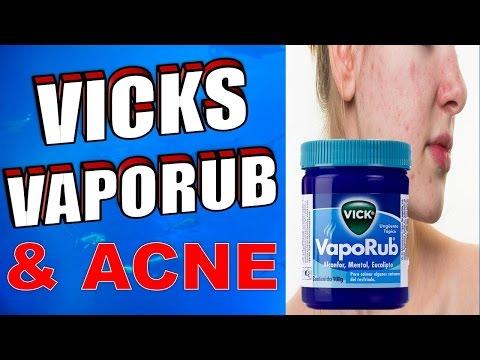 How to Use Vicks Vaporub to Treat Cystic Acne