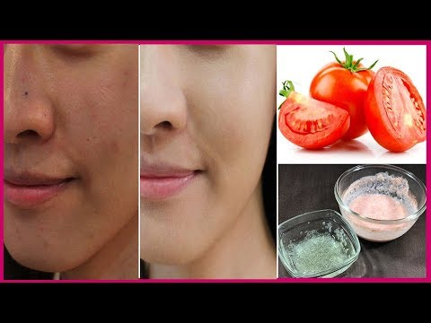 How To Remove Sun Tan in 1 Day - Magical Sun Tan Removal Remedy at Home