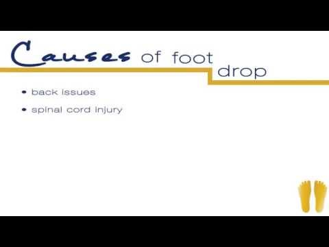 What Causes the Foot to Drop Down?
