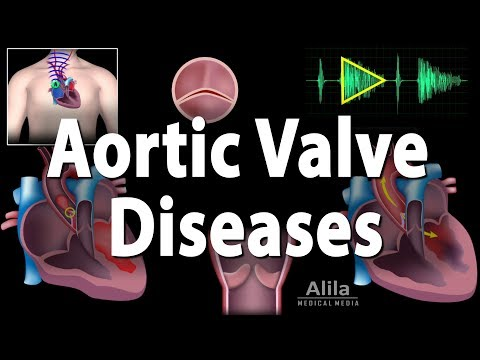 Aortic Valve Disease, Animation