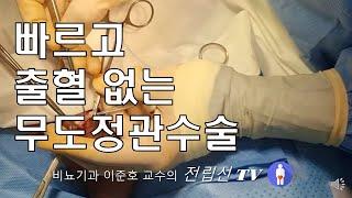 정관수술; 무도정관수술