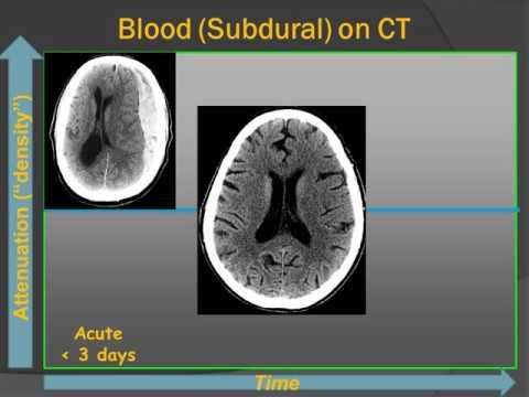 Brain Blood Clots