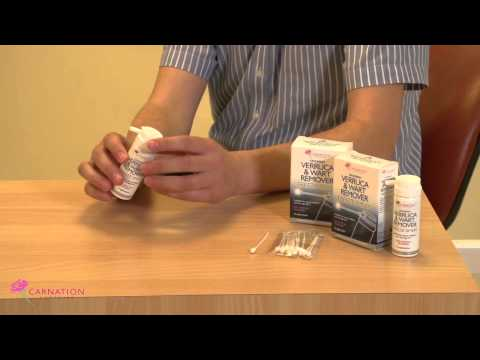 How to treat Warts and Verrucas