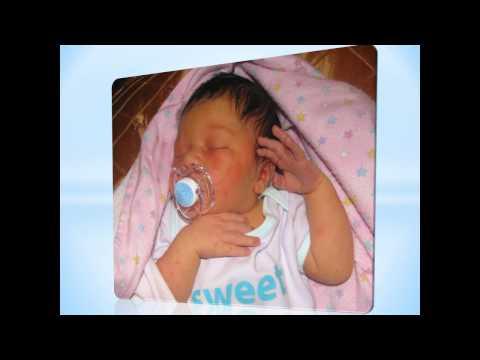 Jaundice In Newborns - Newborn Babies Symptoms & Treatment