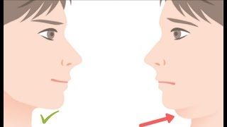 How to Get Rid of Double Chin in 5 Minutes
