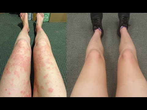 4 Things I Learned After 12 Months of Eczema Recovery