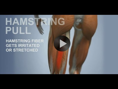 Common Sports Injuries: Hamstring Pull