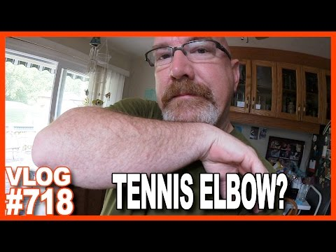 TENNIS ELBOW? WTH IS WRONG WITH ME?