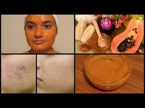 How to get rid of DARK SPOTS, PIGMENTATIONS & ACNE SCARS   Papaya Face Mask
