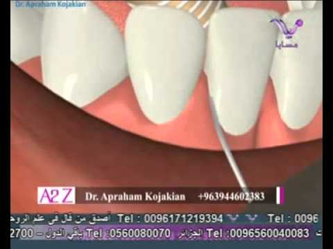 Dr.Apraham Kojakian  Oral Hygiene د. أبراهام كوجكيان - الصحة الفموية