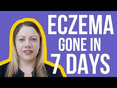 Eczema Skin Rash Cure & Treatment | Skin Rashes That Itch 90% Gone In 7 Days 100% Natural