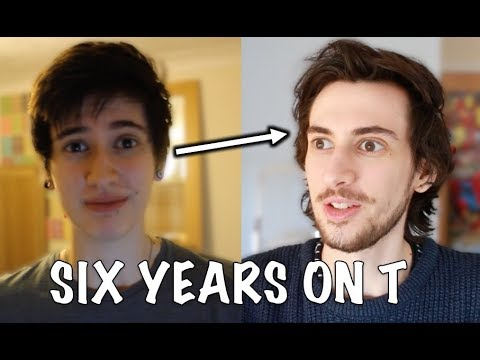 FTM 6 Years on T Update