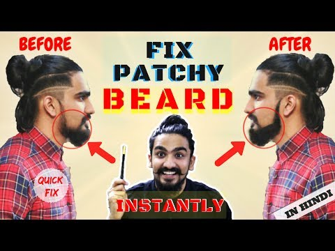 2017 How to Fill Patchy Beard INSTANTLY | Patchy Beard Fix in Hindi