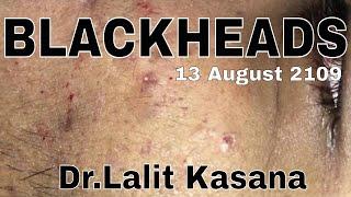 BIG BLACKHEAD REMOVAL/ANTI-ACNE TREATMENT PART-1 - PakVim