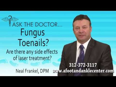 Fungus Nails - Are There Any Side Effects Of Laser Treatments? Chicago - Podiatrist