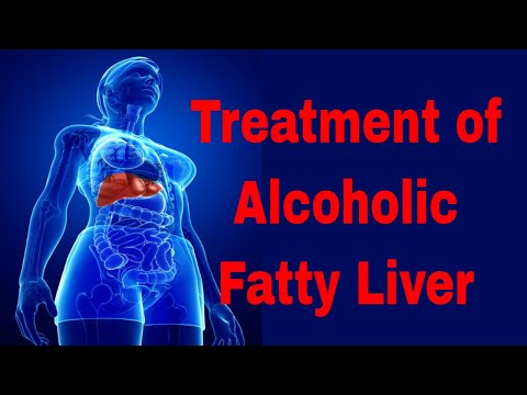 Treatment of Alcoholic Fatty Liver Disease